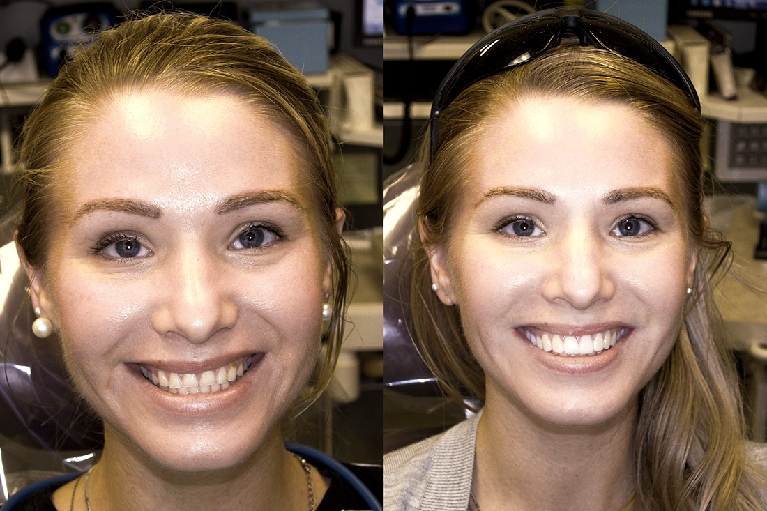 Same Day Veneers
