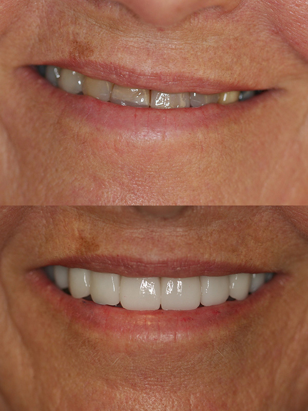 Dorothy Before After Veneer Smile