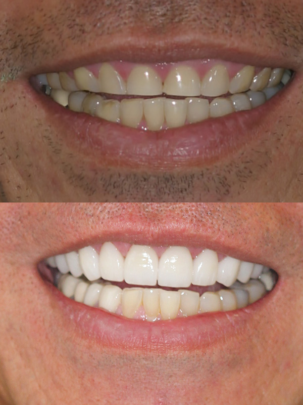Jimmy Before After Veneer Smile
