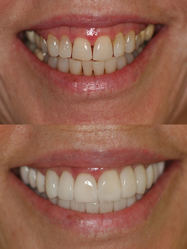 Mary Before After Veneer Smile
