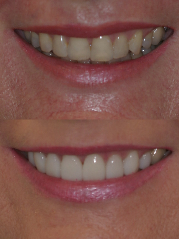 Michele Before After Veneer Smile